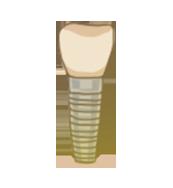 implantacia (1)