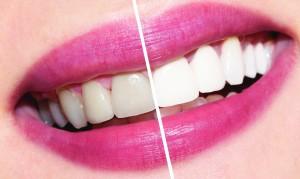 otbelivanie_zubov_