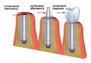 implant9