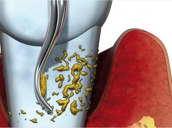 parodontitis-2